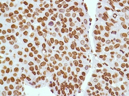 Immunohistochemistry (Formalin/PFA-fixed paraffin-embedded sections) - Anti-ERCC1 antibody [SP68] (ab225721)