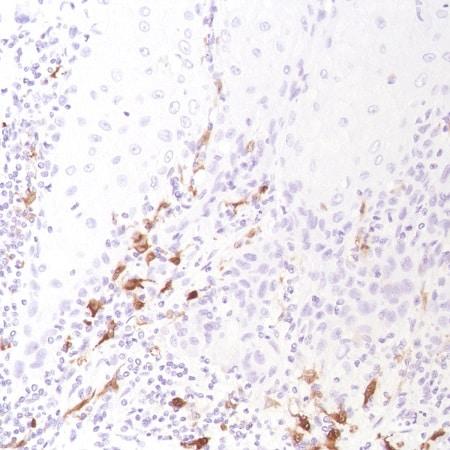 Immunohistochemistry (Formalin/PFA-fixed paraffin-embedded sections) - Anti-Factor XIIIa antibody [SP196] (ab225722)