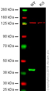 Western blot - Anti-GNAQ antibody [EPR20978] - BSA and Azide free (ab225744)