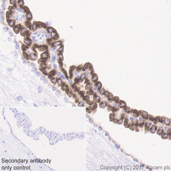Immunohistochemistry (Formalin/PFA-fixed paraffin-embedded sections) - Anti-IGFBP2 antibody [EPR18012-257] - BSA and Azide free (ab225763)
