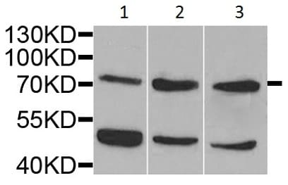 Western blot - Anti-IL-10RA antibody (ab225820)