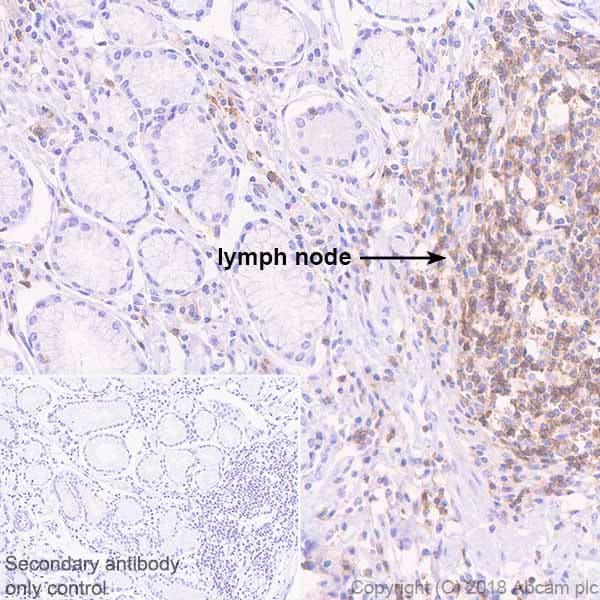 Immunohistochemistry (Formalin/PFA-fixed paraffin-embedded sections) - Anti-TREM1 antibody [EPR22060-229] (ab225861)