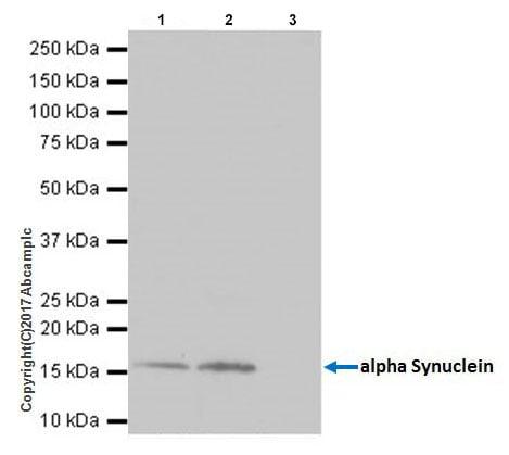 Immunoprecipitation - Anti-Alpha-synuclein antibody [EPR20535] - BSA and Azide free (ab225866)