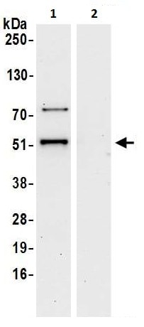 Immunoprecipitation - Anti-DDX47 antibody (ab225870)