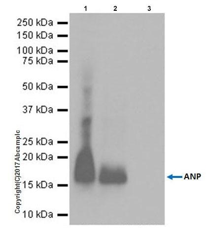 Immunoprecipitation - Anti-Natriuretic peptides A antibody [EPR20247] - BSA and Azide free (ab225873)