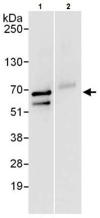 Immunoprecipitation - Anti-TCP1 epsilon/CCT5 antibody (ab225876)