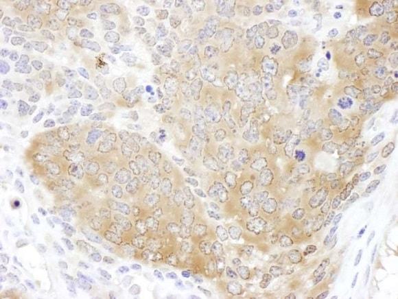Immunohistochemistry (Formalin/PFA-fixed paraffin-embedded sections) - Anti-TCP1 epsilon/CCT5 antibody (ab225876)