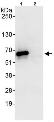 Immunoprecipitation - Anti-CCT2 antibody (ab225879)