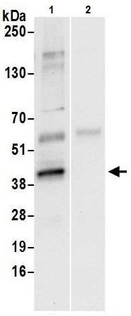 Immunoprecipitation - Anti-ATF1 antibody (ab225880)