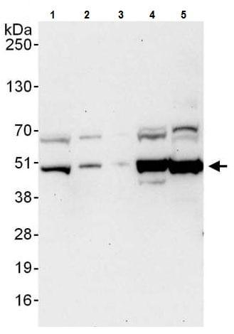 Western blot - Anti-ATG4B antibody (ab225882)