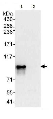 Immunoprecipitation - Anti-Glucocorticoid Receptor antibody (ab225886)