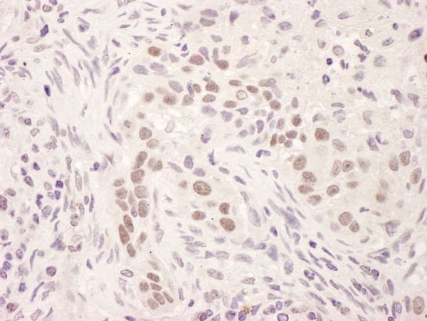 Immunohistochemistry (Formalin/PFA-fixed paraffin-embedded sections) - Anti-Glucocorticoid Receptor antibody (ab225886)