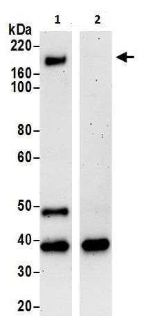 Immunoprecipitation - Anti-CELSR1 antibody (ab225889)