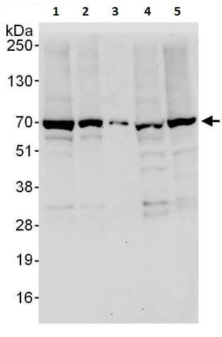 Western blot - Anti-SYVN1/HRD1 antibody (ab225891)