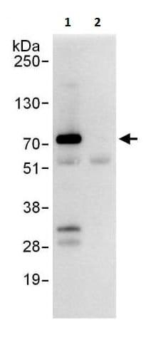 Immunoprecipitation - Anti-SYVN1/HRD1 antibody (ab225891)