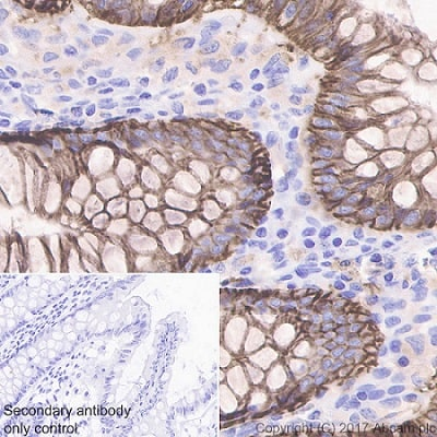 Immunohistochemistry (Formalin/PFA-fixed paraffin-embedded sections) - Anti-EpCAM antibody [EPR20532-225] - BSA and Azide free (ab225894)