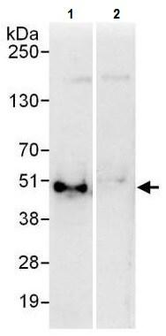 Immunoprecipitation - Anti-EBP50/NHERF-1 antibody (ab225904)