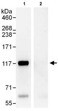 Immunoprecipitation - Anti-ANKLE2 antibody (ab225905)
