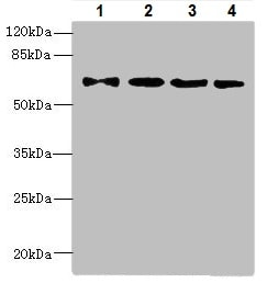 Western blot - Anti-ZNF324 antibody (ab225914)