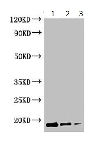 Western blot - Anti-Cyclomaltodextrin glucanotransferase antibody - C-terminal (ab225920)