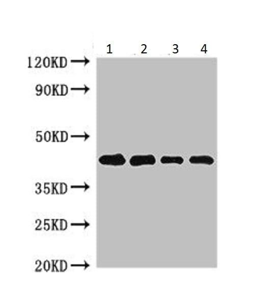 Western blot - Anti-Pollen allergen Phl p 5b antibody (ab225921)