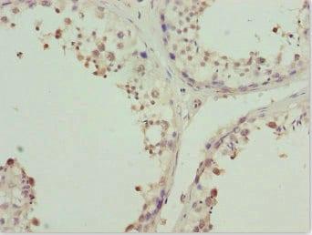 Immunohistochemistry (Formalin/PFA-fixed paraffin-embedded sections) - Anti-ZNF264 antibody (ab225930)