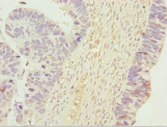 Immunohistochemistry (Formalin/PFA-fixed paraffin-embedded sections) - Anti-UGT2B10 antibody (ab225931)