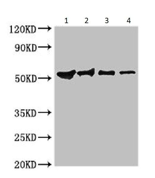 Western blot - Anti-Guanine nucleotide-binding protein subunit beta-like protein antibody (ab225934)