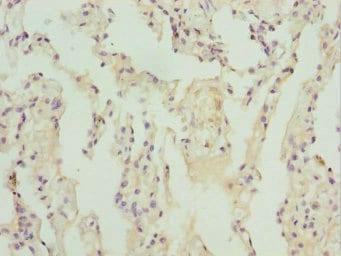 Immunohistochemistry (Formalin/PFA-fixed paraffin-embedded sections) - Anti-ZBTB48 antibody - N-terminal (ab225935)