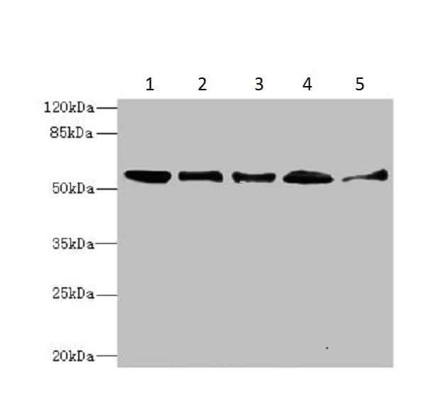 Western blot - Anti-Glycerate kinase antibody - C-terminal (ab225936)