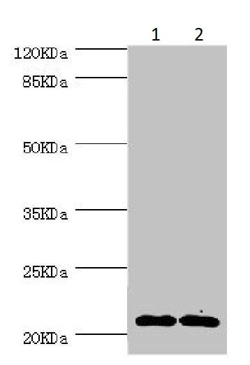 Western blot - Anti-Nucleoside-diphosphate kinase antibody (ab225940)