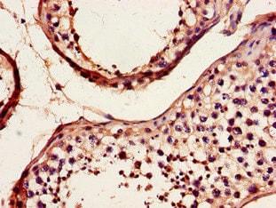 Immunohistochemistry (Formalin/PFA-fixed paraffin-embedded sections) - Anti-DYNC2H1 antibody (ab225946)