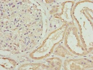 Immunohistochemistry (Formalin/PFA-fixed paraffin-embedded sections) - Anti-ZNF24 antibody (ab225956)
