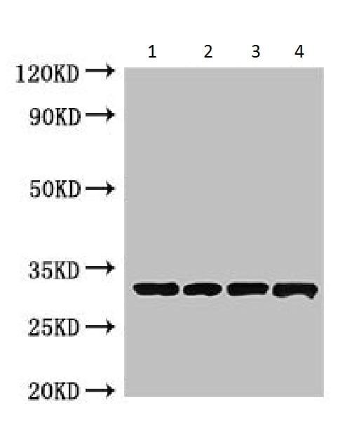 Western blot - Anti-Beta-Lactamase Inhibitory Protein antibody (ab225987)