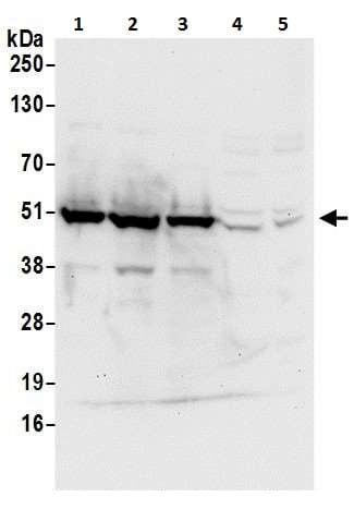 Western blot - Anti-PDIA6 antibody (ab225993)