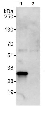 Immunoprecipitation - Anti-Heme Oxygenase 1 antibody (ab225996)