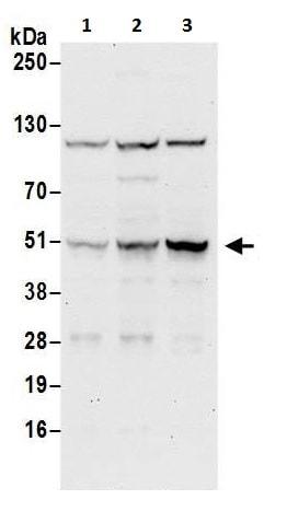 Western blot - Anti-CCDC97 antibody (ab225997)