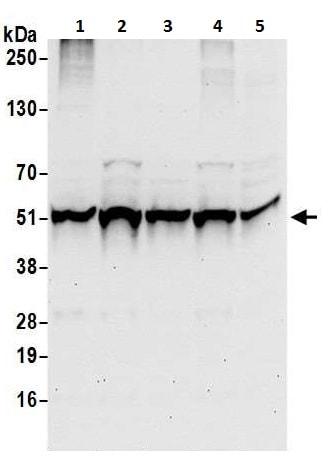 Western blot - Anti-TIP49A antibody (ab226001)