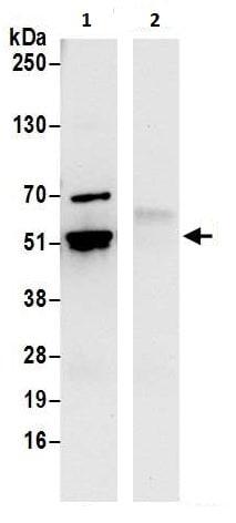 Immunoprecipitation - Anti-TIP49A antibody (ab226001)