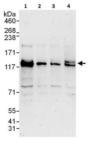 Western blot - Anti-SNM1A antibody (ab226003)