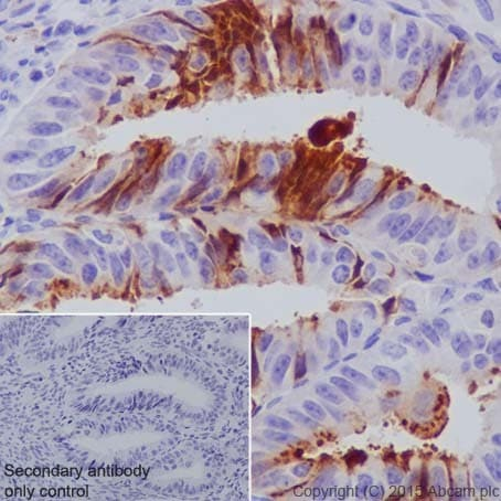 Immunohistochemistry (Formalin/PFA-fixed paraffin-embedded sections) - Anti-MMP7 antibody [EPR17888-71] - Low endotoxin, Azide free (ab226005)
