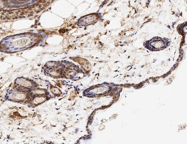 Immunohistochemistry (Formalin/PFA-fixed paraffin-embedded sections) - Anti-EGFR antibody [E114] - Low endotoxin, Azide free (ab226011)