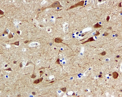 Immunohistochemistry (Formalin/PFA-fixed paraffin-embedded sections) - Anti-Cdc37 antibody [EPR4935] - BSA and Azide free (ab226022)