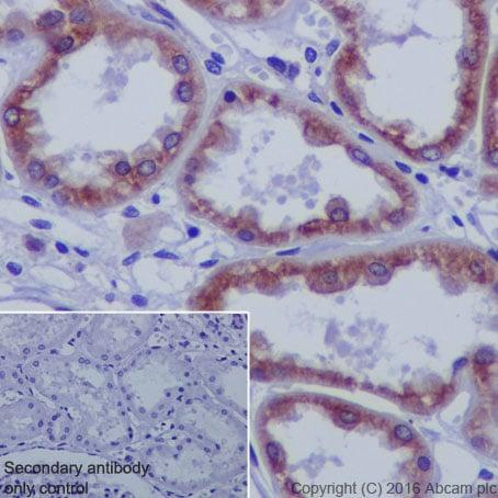 Immunohistochemistry (Formalin/PFA-fixed paraffin-embedded sections) - Anti-beta Tubulin antibody [EPR1330] - BSA and Azide free (ab226028)