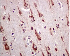 Immunohistochemistry (Formalin/PFA-fixed paraffin-embedded sections) - Anti-GRP78 BiP antibody [EPR4040(2)] - BSA and Azide free (ab226042)