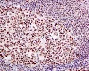 Immunohistochemistry (Formalin/PFA-fixed paraffin-embedded sections) - Anti-HP1 alpha antibody [EPR5777] - BSA and Azide free (ab226049)