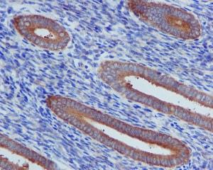 Immunohistochemistry (Formalin/PFA-fixed paraffin-embedded sections) - Anti-TNF Receptor II antibody [EPR1653] - BSA and Azide free (ab226058)