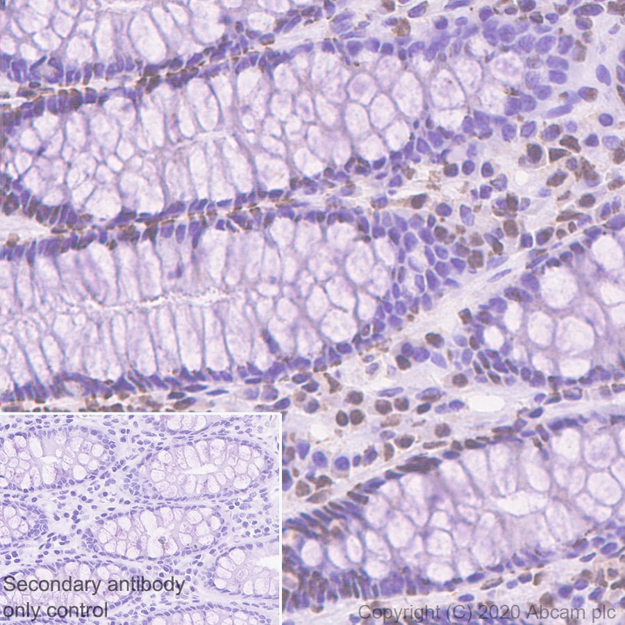 Immunohistochemistry (Formalin/PFA-fixed paraffin-embedded sections) - Anti-MSH3 antibody [EPR4334(2)] - BSA and Azide free (ab226079)