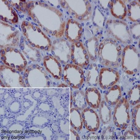 Immunohistochemistry (Formalin/PFA-fixed paraffin-embedded sections) - Anti-IL-1RA antibody [EPR6483] - BSA and Azide free (ab226101)