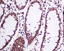 Immunohistochemistry (Formalin/PFA-fixed paraffin-embedded sections) - Anti-Nucleolin antibody [EPR7952] - BSA and Azide free (ab226113)